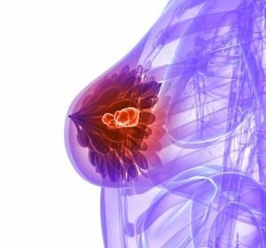 Tumor-infiltrierende Lymphozyten beim Mammakarzinom: Variationen und Ausmaß