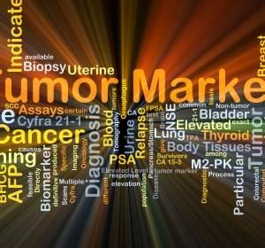 CRC: Expression von MMP-13 an Krebsentstehung gekoppelt