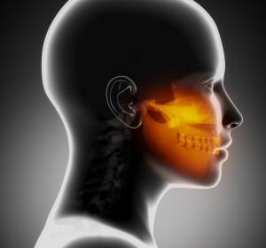 Kopf-Hals-Karzinom: Vorteil im Gesamtüberleben durch Nivolumab