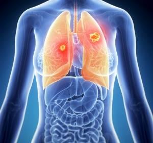 Erstlinienbehandlung beim NSCLC: Immuntherapie mit Pembrolizumab