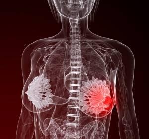 HR+/HER2- metastasierter Brustkrebs: Neu zugelassenes Palbociclib verlängert in Kombination mit Letrozol das PFS