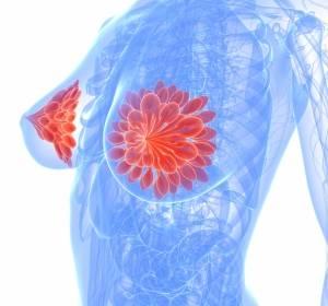 Kommentar zur IQWiG-Beurteilung zur Erstattungsfähigkeit von Brustkrebs Genexpressionstests