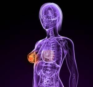 Frühes HER2+ Mammakarzinom: Pertuzumab + Trastuzumab + Chemo verbessert Komplettremission
