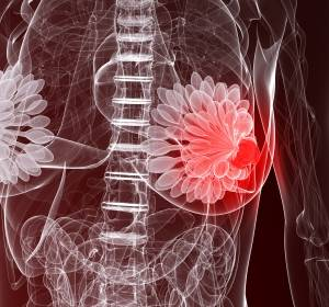 HER2-positives metastasiertes Mammakarzinom: Auch Patientinnen mit Hirnmetastasen profitieren von Trastuzumab Emtansin