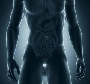 Leitlinienprogramm Onkologie aktualisiert Empfehlungen zum Prostatakarzinom