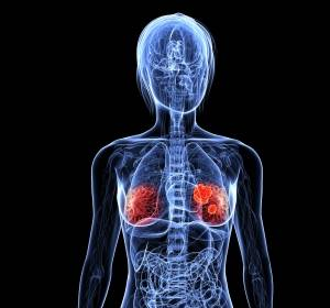 Mammakarzinom: Tumorsuppressor LATS bestimmt Zellentwicklung