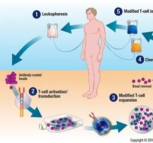 B-Zell-ALL: Zwischenanalyse belegt Wirksamkeit einer Therapie mit T-Zellen