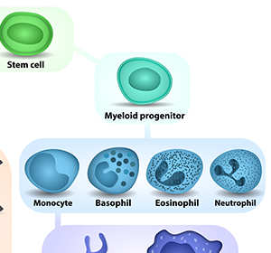 Wissensdatenbank soll optimale Therapie der 11 AML-Subtypen ermöglichen