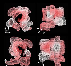 Kolorektales Karzinom – Räumliche Muster genetischer Veränderungen in 3D