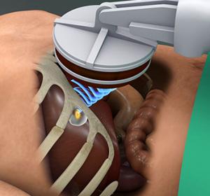 Ultraschall-Skalpell zerstört Lebertumoren