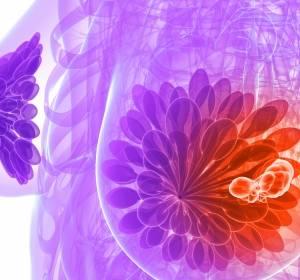 HER2-positives Mammakarzinom: Pertuzumab signifikant überlegen in der adjuvanten Therapie