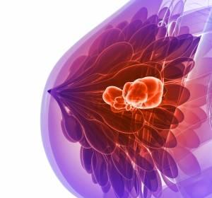 Boost-Bestrahlung bringt bessere Tumorkontrolle bei Brustkrebs