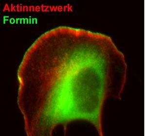 Metastasenbildung: Wie sich Zellen mithilfe von Proteinfilamenten bewegen