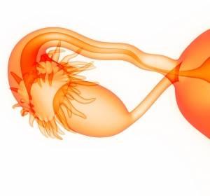 Ovarialkarzinom: Bevacizumab plus Carboplatin und Paclitaxel als First-Line-Standard