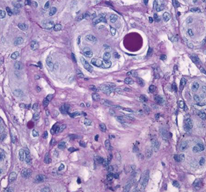 Meningeom: Methylierungsmuster zur Beurteilung der Aggressivität