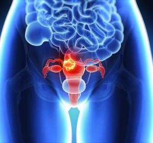 Fortgeschrittenenes Gebärmutterkarzinom: Kein verlängertes OS mit Zoptarelin Doxorubicin belegt