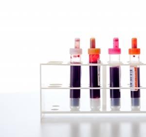 Fettsäuren im Blut geben Auskunft über die Höhe des Ballaststoffverzehrs
