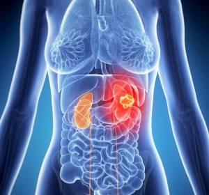 Zusatznutzen von Cabozantinib bei Behandlung des fortgeschrittenen Nierenzellkarzinoms