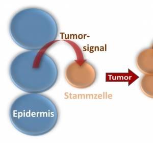Tumorbildung durch Signale aus angrenzendem Gewebe