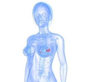 Molekulare Brustkrebs-Diagnostik: Agilent Technologies und Agendia unterzeichnen Vereinbarung