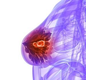 ASCO 2017: Signifikante Risikoreduzierung für Tod mit Olaparib bei BRCA-mutiertem metastasierten Mammakarzinom