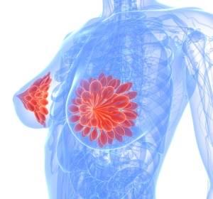 Mammakarzinom: Ribociclib erhält positives CHMP-Votum als Erstlinientherapie in Kombination mit Aromatasehemmer