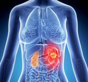 Nierenzellkarzinom: Zweittherapie mit Mutationsmuster von Metastasen individuell anpassen