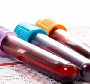 Prostatakarzinomfrüherkennung: Differenziertes Vorgehen notwendig