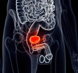 Urothelkarzinom: Verbessertes Gesamtüberleben durch Pembrolizumab gegenüber Chemotherapie