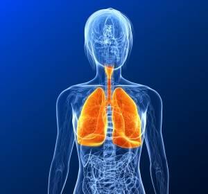 Reduktion von Mortalität und Inzidenz beim Bronchialkarzinom durch ACZ885