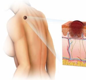 CheckMate-238: Nivolumab zeigt überlegenes rezidivfreies Überleben gegenüber Ipilimumab bei Patienten mit reseziertem Hochrisiko-Melanom