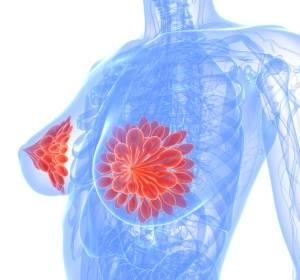 ER+/HER2-negativer Brustkrebs: Neoadjuvant Letrozol + Taselisib zeigt in LORELEI bessere Ansprechrate als Letrozol + Placebo