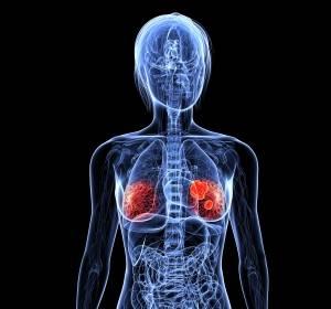 Interimsanalyse von MONARCH 3: Abemaciclib verbessert ORR und verlängert PFS von Patientinnen mit HR+/HER2- fortgeschrittenem Brustkrebs signifikant