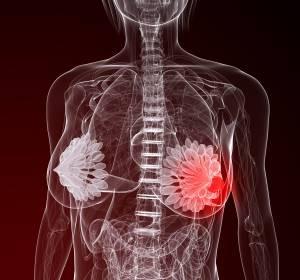 HER2-positives Mammakarzinom: Pertuzumab in der Adjuvanz senkt Rezidivrisiko signifikant