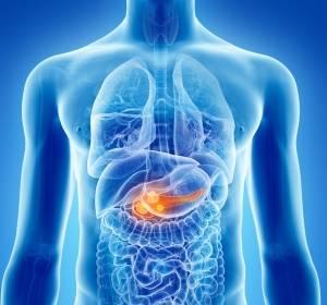 Wie hat sich die Therapie für Patienten mit metastasiertem Pankreaskarzinom verändert?