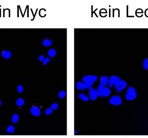 Neuer Ansatz für Medikamentenentwicklung durch Hemmung von Myc-Proteinen