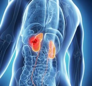 Neuer Tyrosin-Kinase-Inhibitor für fortgeschrittenes Nierenzellkarzinom zugelassen