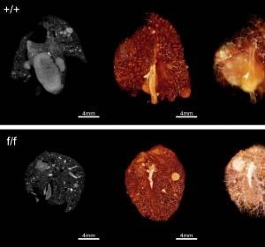 Aggressives Adenokarzinom der Lunge: RANK/RANKL-System gemeinsam mit weiblichen Sexualhormonen als Key-Player