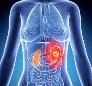 mRCC: Tivozanib hemmt vaskuläre endotheliale Wachstumsfaktor-Rezeptoren