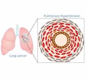 Lungenkrebs und PAH: Immunzellen und Entzündungszellen in der Tumorumgebung sind starke Antriebskraft für Entstehung einer pulmonalen Hypertonie