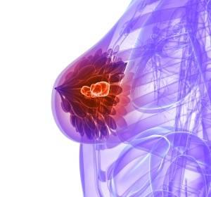 MR-gesteuerte Vakuum-Biopsie zur Erkennung von Brustkrebs etabliert