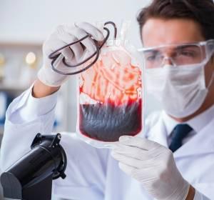 Eisenchelation auch bei Niedrigrisiko-MDS mit Überlebensvorteil verbunden