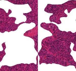 Tumor-infiltrierende Lymphozyten sagen Heilungschancen bei Brustkrebs voraus