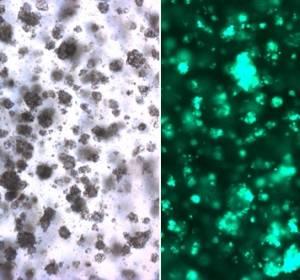 Mit 3D-Zellkulturen gegen Krebsresistenzen