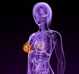 Wirksamkeit von nab-Paclitaxel beim metastasierten Brustkrebs