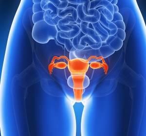 Ovarialkarzinom: Niraparib in der EU zugelassen