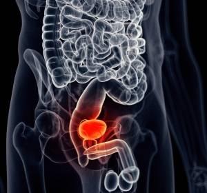 Harnblasenkrebs: Kombination genetischer Varianten als Risikofaktor