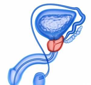Prostatakarzinom: Testosteron-Suppression mit Leuprorelin-Implantat