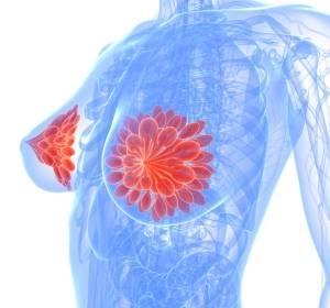 HER2-positives Mammakarzinom: AGO empfiehlt Pertuzumab mit einem Plus für die adjuvante Therapie