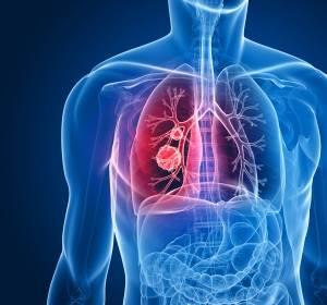 Strahlentherapie am Erfolg der Immuntherapie beim fortgeschrittenen NSCLC beteiligt